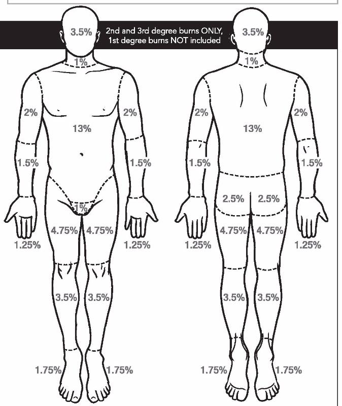Burn Chart  U0026 Guidelines