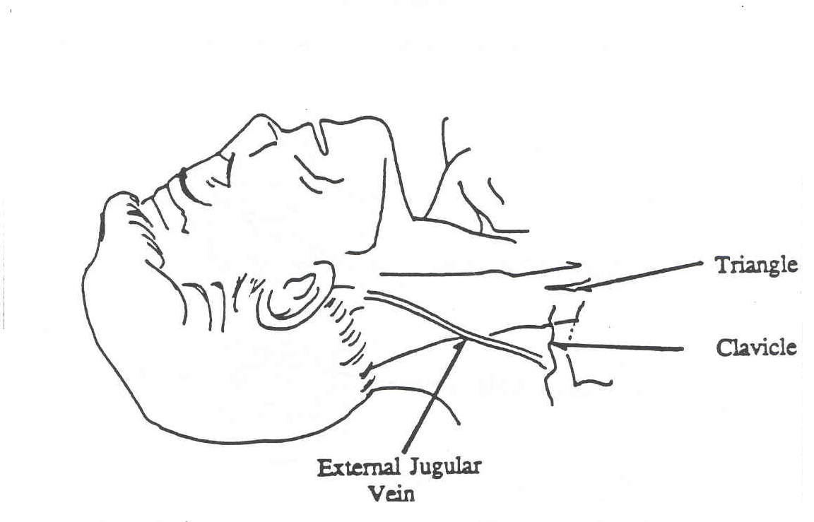 External Jugular Vein Cannulation